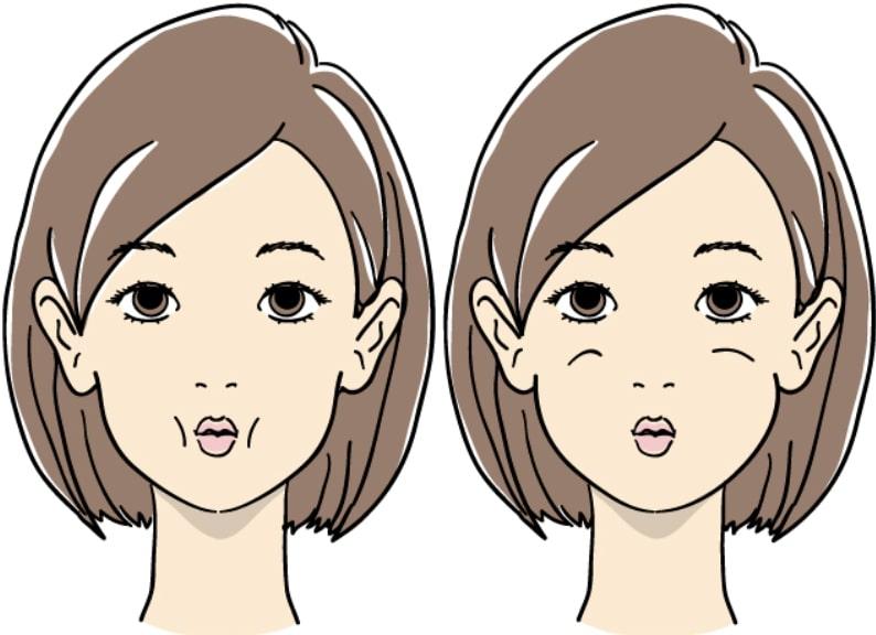 頰のたるみ エクササイズ