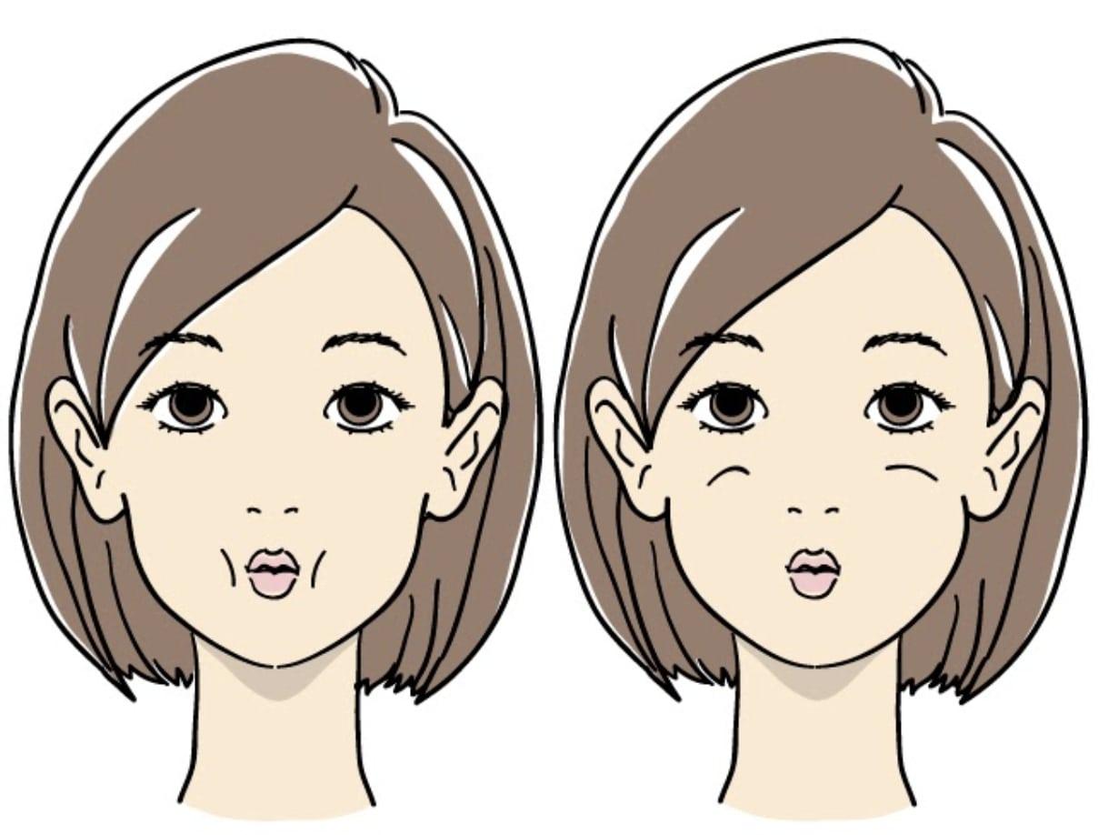 頬のたるみのエクササイズ